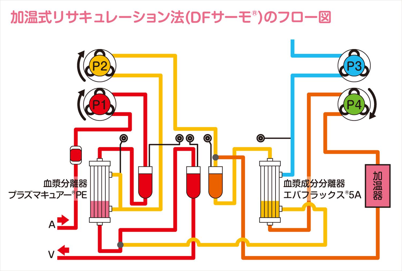 二重濾過血漿交換(加温式リサキュレーション法)のフロー図